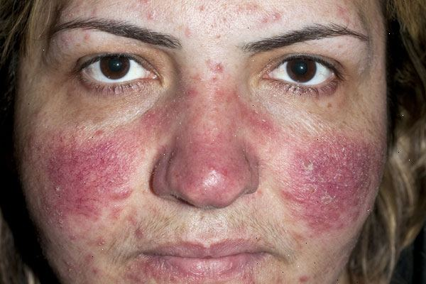 rosacea behandling tabletter